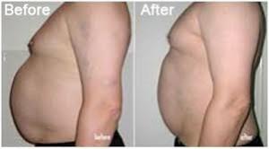 antes y despues de cavitacion