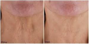 flacidez de la piel