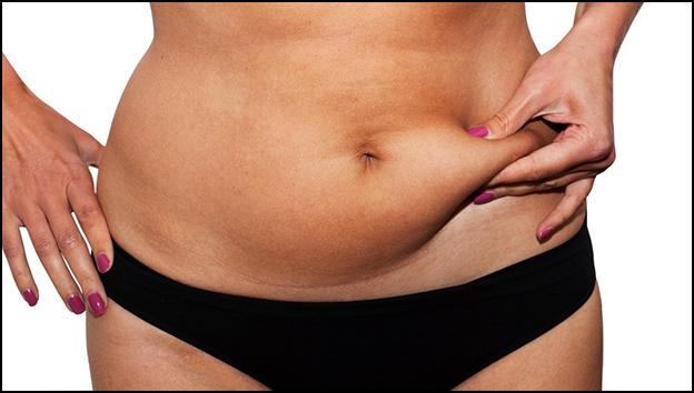 ultracavitacion para eliminar grasa